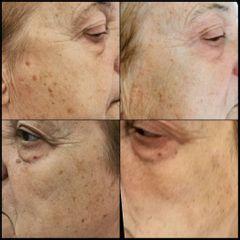 Antes y después Tratamiento antimanchas - Dra. Lucía Zamudio Sánchez