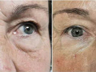 Antes y después Blefaroplastia - Dra. Lucía Zamudio Sánchez