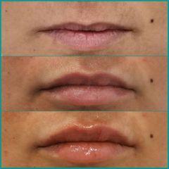 Aumento de labios - Dra. Lucía Zamudio Sánchez