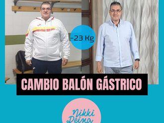 Balón gástrico - 701588