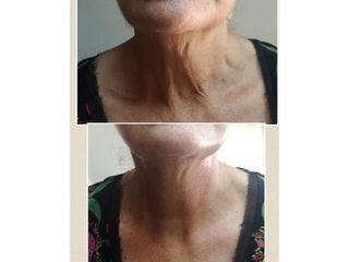 Rejuvenecimiento de cuello con plasmapen - Nikki Reina