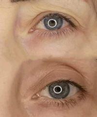 Rejuvenecimiento de párpados sin cirugía con plasmapen - Nikki Reina