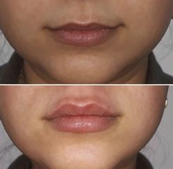Relleno labios