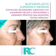 Blefaroplastia - Rc Estética