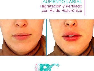 Aumento labios-739655