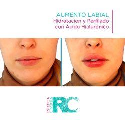 Aumento de labios - Rc Estética