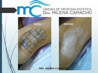 Antes y después Tratamiento de la hiperdrosis axilar (sudoración excesiva) con Botox