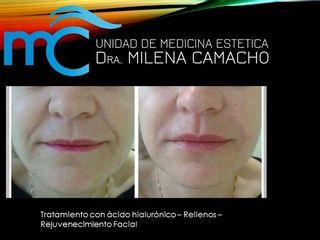 Antes y después Ácido hialurónico en rejuvenecimiento facial