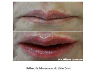 Aumento labios - 572943