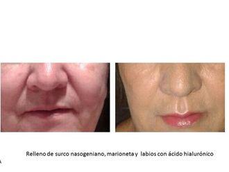 Ácido hialurónico-572944