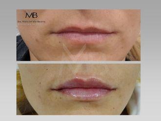 Aumento labios-648285