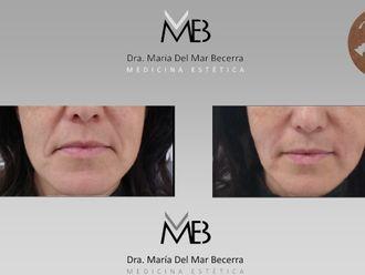 Rejuvenecimiento facial-648286