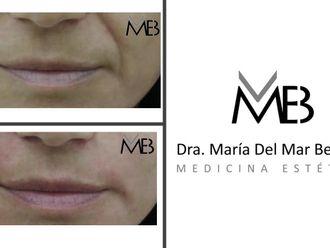 Rejuvenecimiento facial-648287
