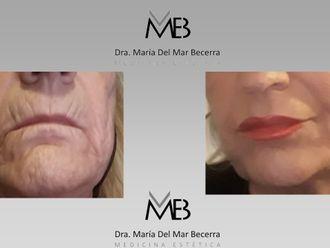 Rejuvenecimiento facial-648292
