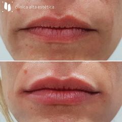 Aumento de labios - Alta Estética