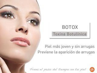 Tratamiento Anti Envejecimiento Toxina Botulínica