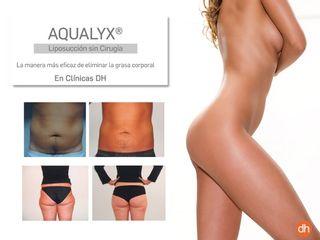 Liposucción sin cirugía tratamiento Aqualyx - antes y después