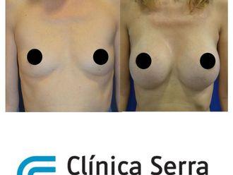 Aumento senos - 629232