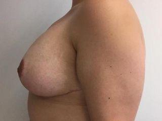 Paciente con asimetría mamaria, foto lateral- POST intervención