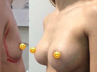 Aumento mamarios con prótesis