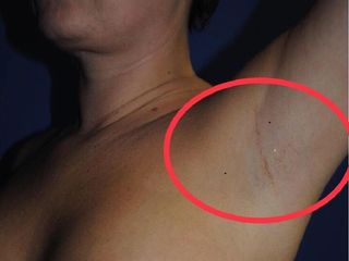 Cicatriz de aumento mamario via axilar. 1 año post cirurgía . Dr Serra Mestre