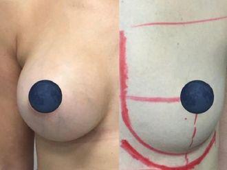 Aumento senos - 632145