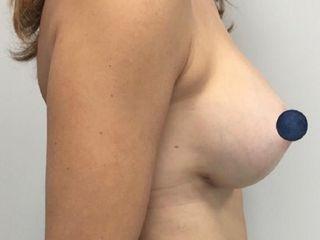 Aumento senos con prótesis, al mes de la cirugía. Doctor J.Mª Serra Mestre