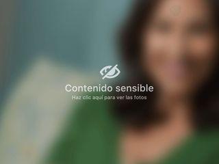 Antes y después Aumento de pecho - Dr. José María Serra Mestre