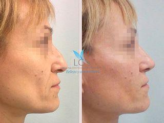 Antes y después Rinomodelación sin cirugía - LC's