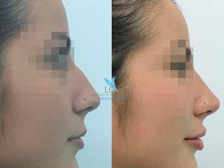 Antes y después Rinoplastia sin cirugía - LC's