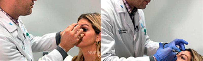 Rinoplastia sin cirugía - LC's