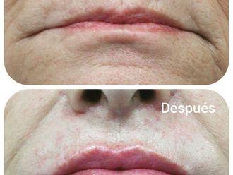 Aumento labios-786105
