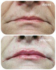 Aumento de labios - Humildad Ruiz