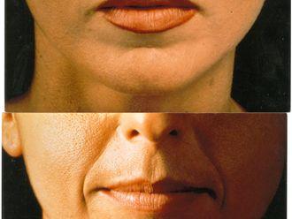 Rellenos faciales-197418