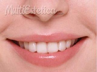 Odontología - Clínica Quantum