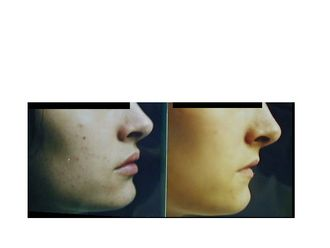 Aumento labios-367004
