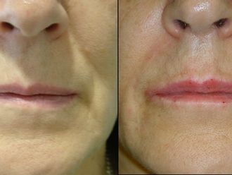 Eliminación arrugas-367015