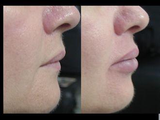 Aumento labios-367024