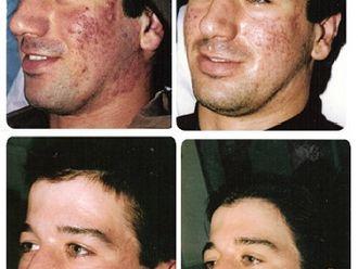 Tratamiento antimanchas-403619