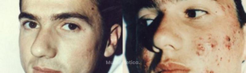 Tratamiento para acné, caso grave