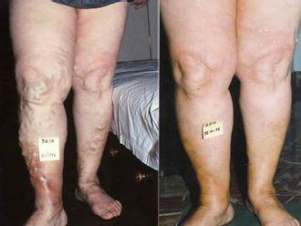 Tratamiento varices-418765