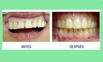 Centroestevez5