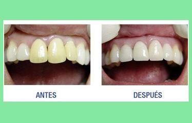 Centroestevez6