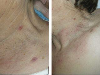 Antes y después Eliminación de verrugas