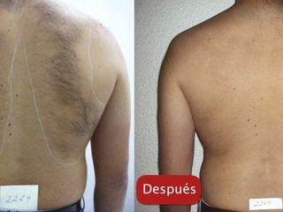 Antes y después Depilación láser