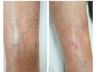 Tratamiento varices - 775516