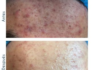 Tratamiento antiacné-775523