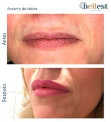Aumento de labios - Bellest