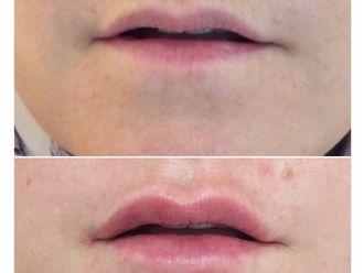 Aumento labios - 630693