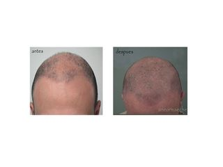 Antes y después micropigmentación capilar